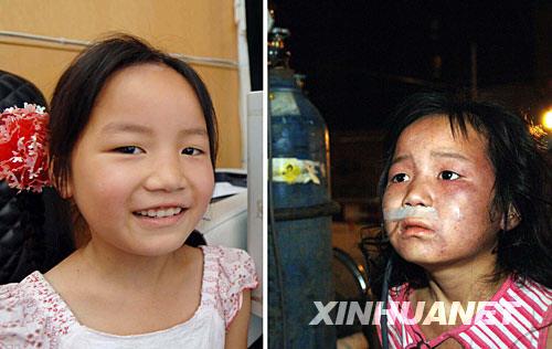 左图:伤愈重返课堂的高雅倩面露微笑(5月27日摄)。 右图:地震中受伤的高雅倩在重庆市梁平县人民医院设在户外的临时病房接受治疗(5月13日摄)。