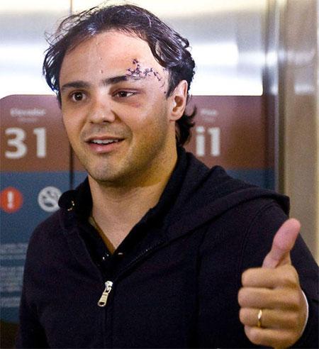 巴西车手马萨成功接受颅骨整形手术