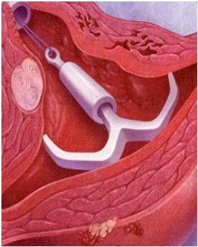 女性子宫带环图片