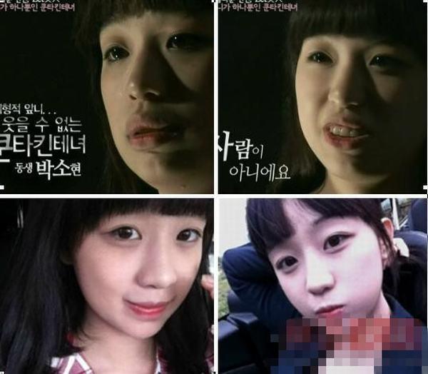 韩国整容节目嘉宾整容前后对比图-韩国整容节目猪扒大翻身 屌丝逆袭图片