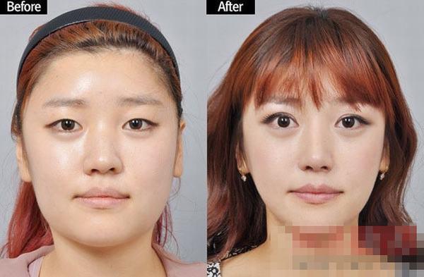 韩国整容节目猪扒大翻身 屌丝逆袭惊变白富美图片