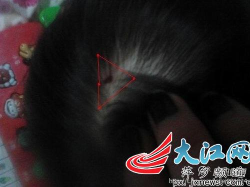 """妤妤(化名)头上的伤疤,家长怀疑幼儿园有""""暴力教育""""。"""