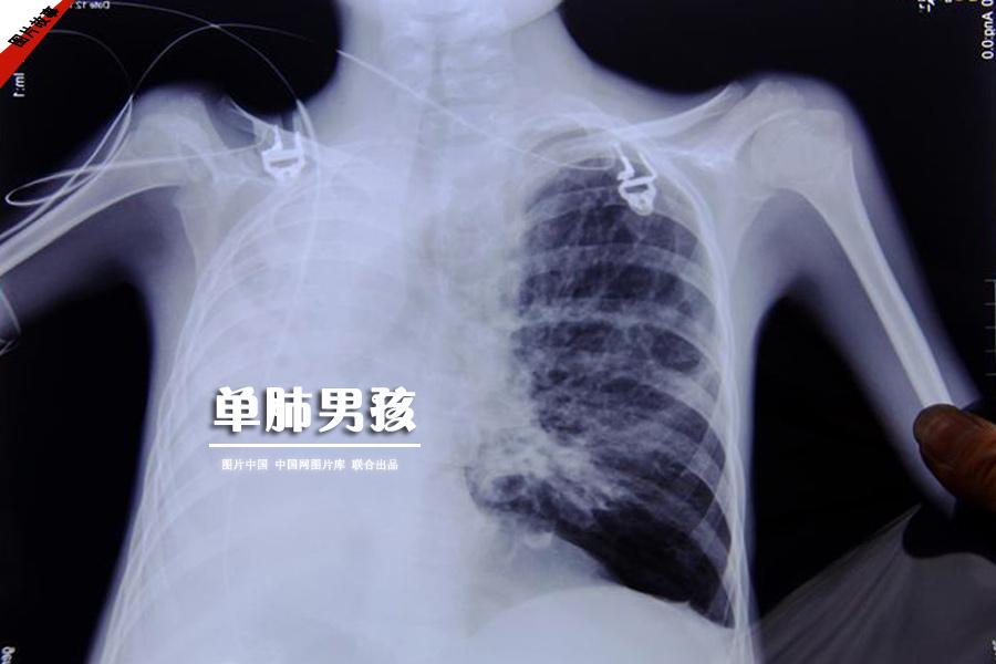 【圖片故事】單肺男孩 圖片中國 中國網圖片庫 聯合出品
