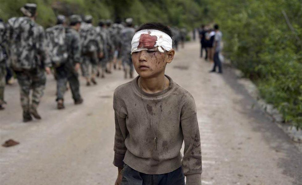 鲁甸地震灾区直击:一个受伤的孩子
