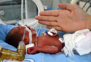湖南首例袖珍婴儿创造生命奇迹将出院