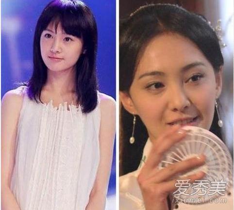 刘晓庆承认整容 盘点娱乐圈大方承认整容的女星图片