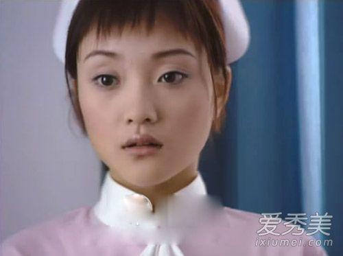 李小璐今昔对比照 整容变身一代网红脸(图)