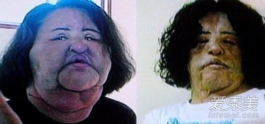 中韩女星痴迷整容术后容貌难以辨识