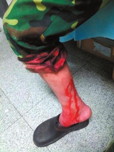 北京朝阳疯狗出没连咬数十人受伤人数仍在统计中