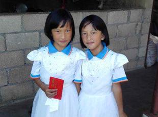 云南首例分身连体女婴已9岁 是快乐的三年级小学生
