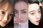 中國女星的歐式雙眼皮