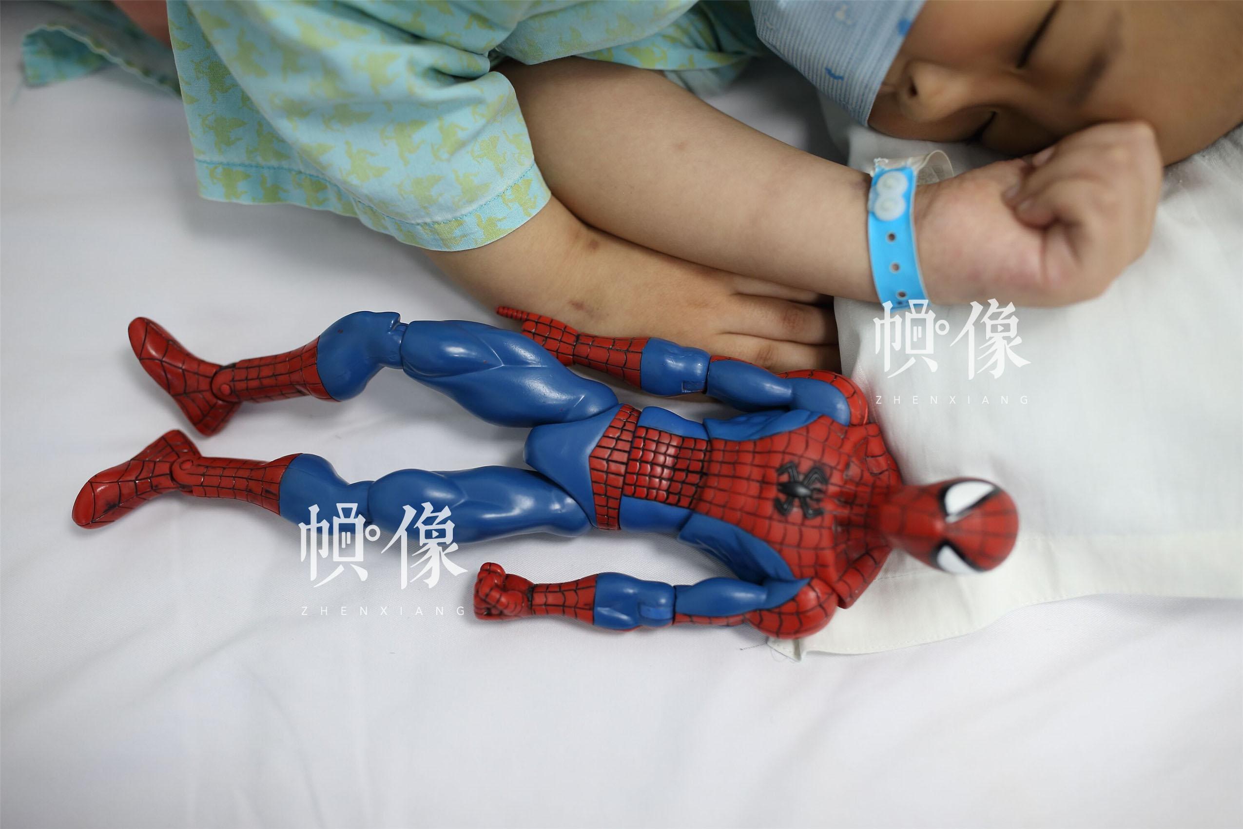 """2017年5月24日,北京首都儿科研究所,天佑把""""蜘蛛侠""""玩具放在身边,躺着睡觉。天佑得的是急性淋巴细胞白血病B型,这种类型的白血病治愈率很高的,有六七成把握。随着医学发展,白血病已经不是不治之症,通过化疗、造血干细胞移植等治疗措施,80%-90%的儿童白血病可以缓解,60%-70%的可以治愈。中国网记者 陈维松 摄"""