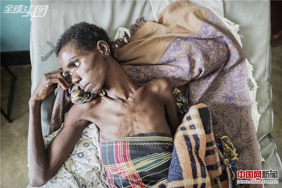 非洲:艾滋病正在改变的面貌