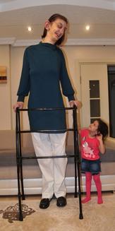 تركية تصبح أطول فتاة في العالم (خاص)