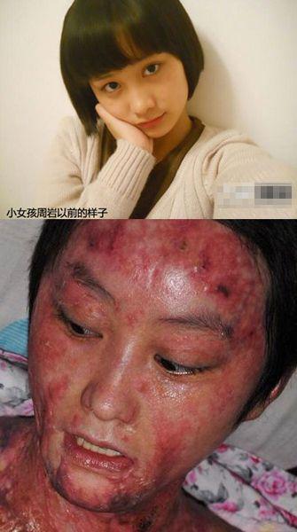 aussehen vor und nach verbrennungen