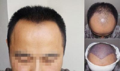 Die Verschwörungen die Behandlung des Haares auf dem Finger