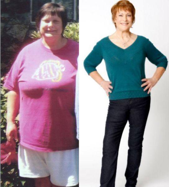 До и после похудение: