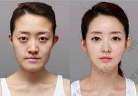 31 изумительный результат пластической операции в Южной Корее
