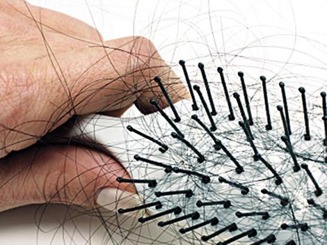Las auténticas razones de la pérdida de cabello
