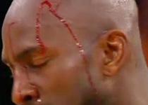Kevin Garnett, de Lakers, está herido en la cabeza