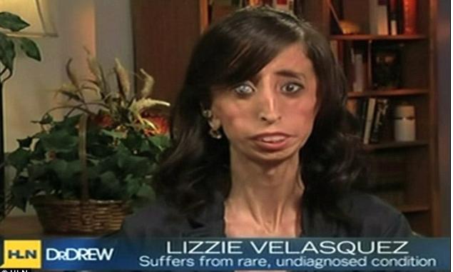 Palabras clave: Lizzie Velasquez, la mujer más fea del mundo