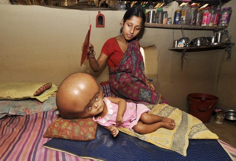 ... india sufre enfermedad rara con la enorme cabeza como extraterrestre