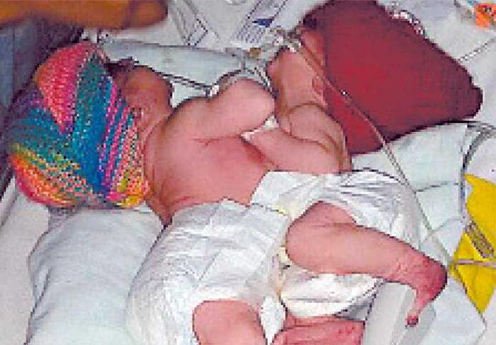 Honduras registra quinto caso de siameses: nacen niñas unidas
