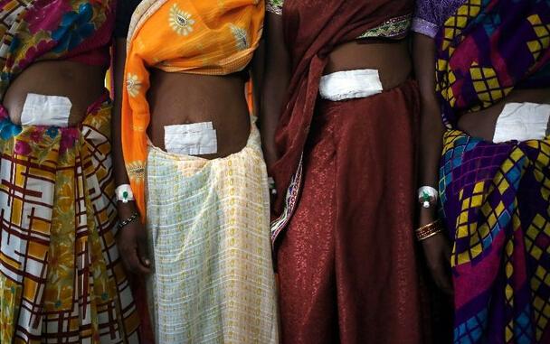 Medicamento para mujeres esterilizadas en India contenía veneno de rata