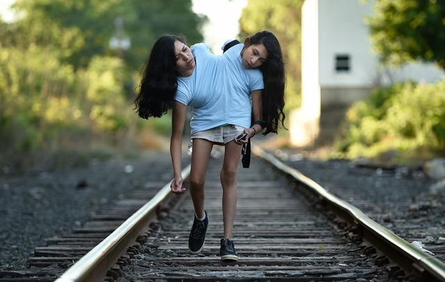 Hermanas gemelas de 16 años rechazan realizar la cirugía de separación