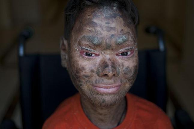 Shalini, la 'niña serpiente' que busca curarse en España