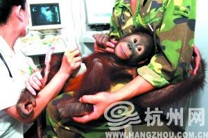 The orangutan will undergo a type-B ultrasonic test at the hospital. [hangzhou.com.cn]