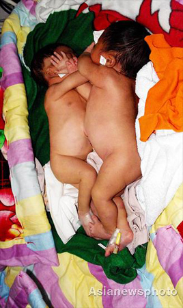Four-day-old conjoined twin boys lie in a bed at the Children's Hospital in Zhengzhou, capital of Central China's Henan Province, November 5, 2008. The twins are joined from their chests down to the bellybutton, but they are in stable condition. The hospital will further examine the twins to see whether they share any organs and how to separate them.