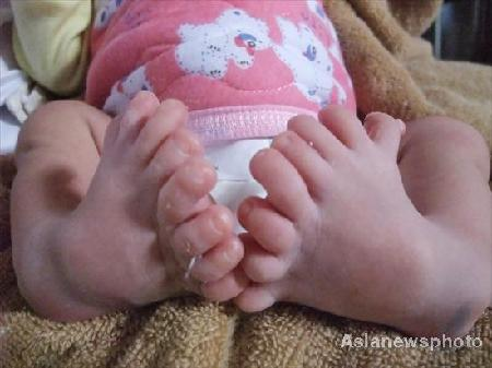 A baby boy with eight toes on each foot was discharged from a hospital in Leizhou, southeast Guangdong province on November 5, 2008. The baby has five fingers on each hand but doesn't have thumbs. Doctor said this might have something to do with genetics or environment pollution. [Photo: Asianewsphoto]