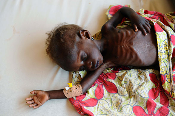 Niger is now facing the worst hunger crisis in its history, the UN's World Food Programme says, with almost half the population - or 7.3 million people - in desperate need of food. The WFP says 17% of children, or one in five, are acutely malnourished. The figure is well above the normal 15% threshold for declaring an emergency.