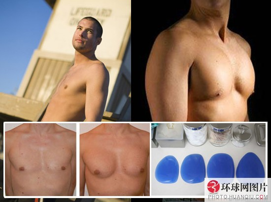 Male Breast Enlargement - A Real Life Success Story!