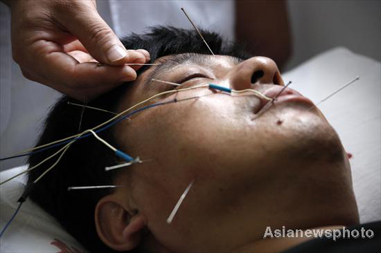 A man receives acupuncture treatment at a hospital in Huaibei, East China's Anhui province in this Sept 13, 2010 file photo. [Photo/Asianewsphoto]