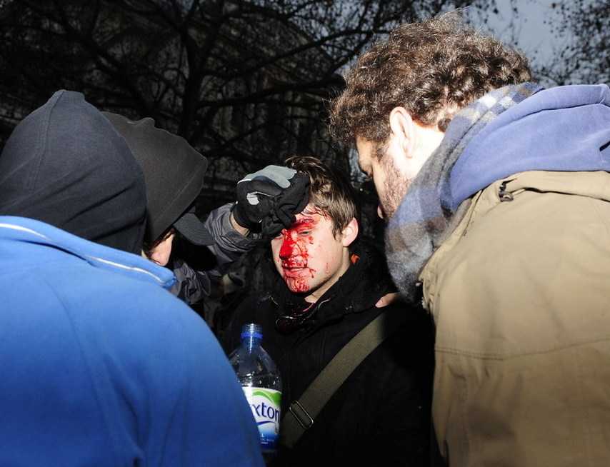 An injured protester is taken care of by his friends in London, Britain, Dec. 9, 2010. Over 20,000 students took to streets to protest against the coalition government&#38;apos;s plan to raise the tuition fees cap in England from 3290 to 9,000 pounds per year, which was passed in the House of Commons Thursday. More than a dozen of policemen and students have been injured during the clash. [Xinhua]
