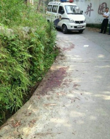 A 61-year-old man from Guizhou Province's Zunyi City was fatally attacked by two vicious Dogo Argentino dogs while exercising on the morning of May 28.[Gog.com.cn]