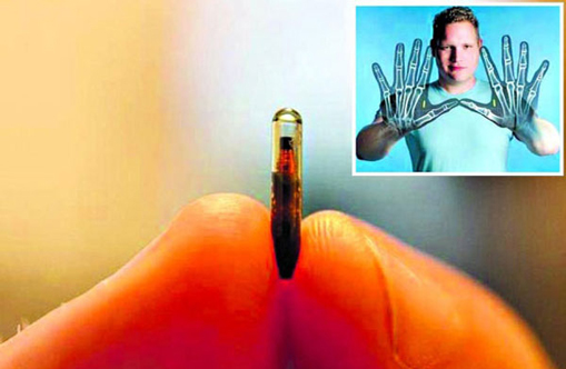 Microchip identification tech can change way of life