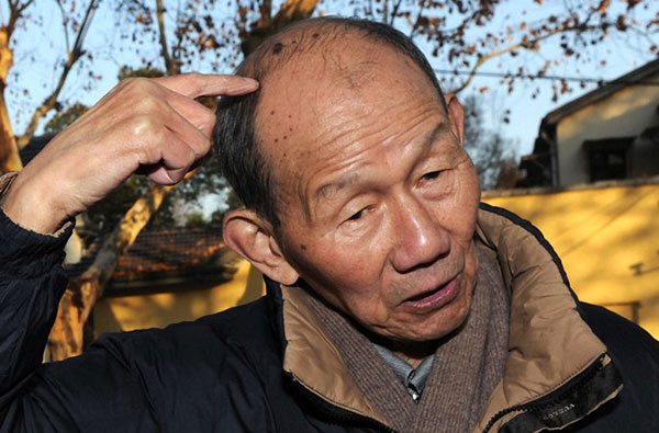 She Ziqing, a survivor of the Nanjing Massacre, recalls being clubbed on the head by a Japanese soldier using a rifle butt. She died on Wednesday at age 83. He was interviewed in 2014.[Photo/Xinhua]