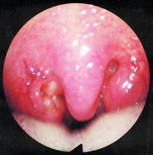 儿童正常咽喉图片
