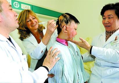 中外烧伤儿童在为整形女生张灏诊专家服务区图片