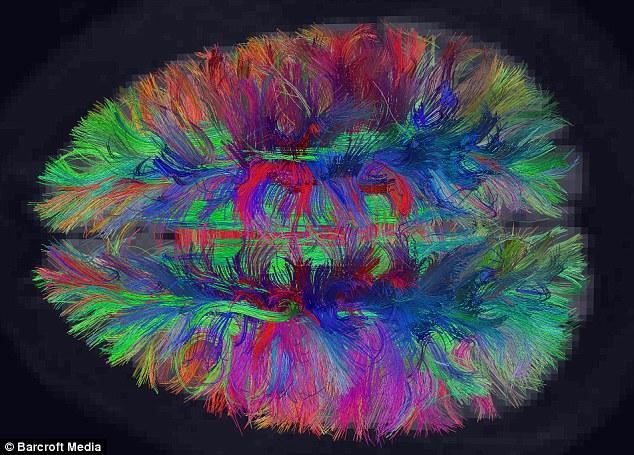 绘制 大脑/图片显示了二维平行神经纤维与其它的纤维直角交叉构成网格结构...