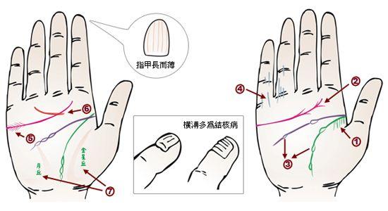 揭秘 从掌纹看你的身体是否健康