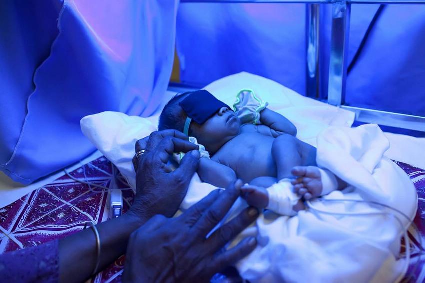 婴儿 黄疸/医生对黄疸患儿进行了蓝光治疗。早产儿易患黄疸。如果婴儿患有...