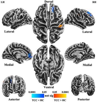 心理所发现进行太极拳锻炼可改变大脑功能活动