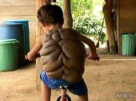 乌龟壳男孩 看得让人揪心图片