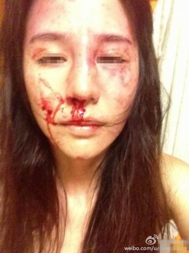裸体美女的小屄屄_美女舞蹈演员被家暴毒打面目全非