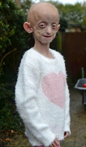 少女 早衰/英国女孩埃利奥特史密斯(Ashanti Elliott/Smith)患有罕见的早衰症...