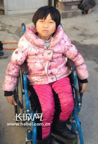 10岁的花季女孩张文秀是脊柱裂患者,生活不能自理,母亲为方便照顾她在学校当清洁工,父亲靠打零工养家,父母每个月的收入仅够维持生活,已无法支付她高额的手术费用,因无钱治疗小姑娘只能坐在轮椅上艰难度日。(